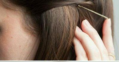 So lässt du lästige Haarnadeln verschwinden