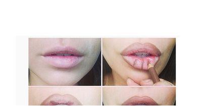 Das traumhafte Lippen-Wunder