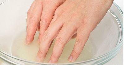 Verfärbte Fingernägel?