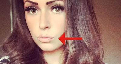 Dieser TRICK zaubert sexy Lippen