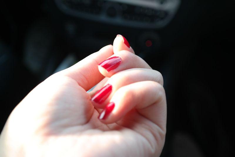 SO rettest du eingerissene Fingernägel