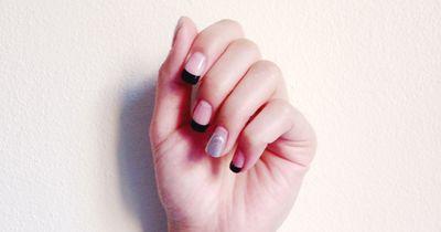 So werden verfärbte Fingernägel wieder weiß