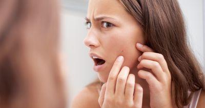 Richtig essen gegen Akne