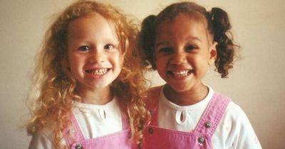 Diese Zwillinge kamen mit zwei unterschiedliche Hautfarben zur Welt