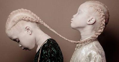 Diese Albino Zwillinge aus Brasilien erobern die Fashion Industrie