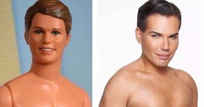 Der menschliche Ken: So sah er vor den OPs aus