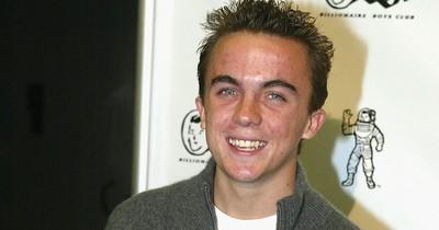 Geheimtipp: So hat dieser Teenager seine Akne besiegt!