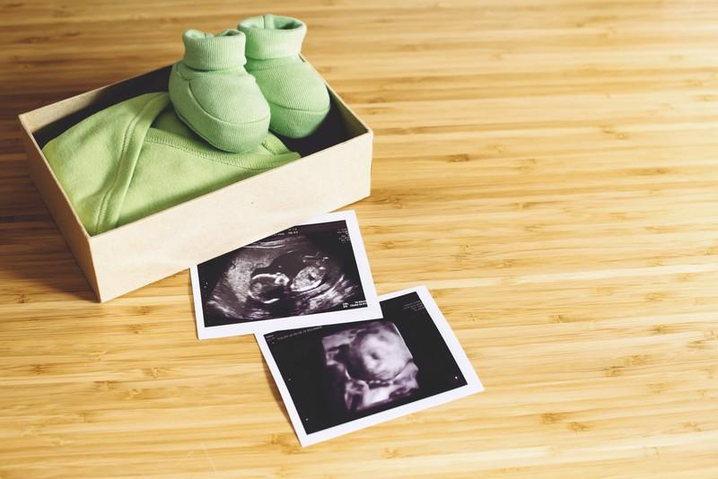 Zwei Ultraschallbilder, die neben einer Box mit Babyschuhen und einem Body liegen.