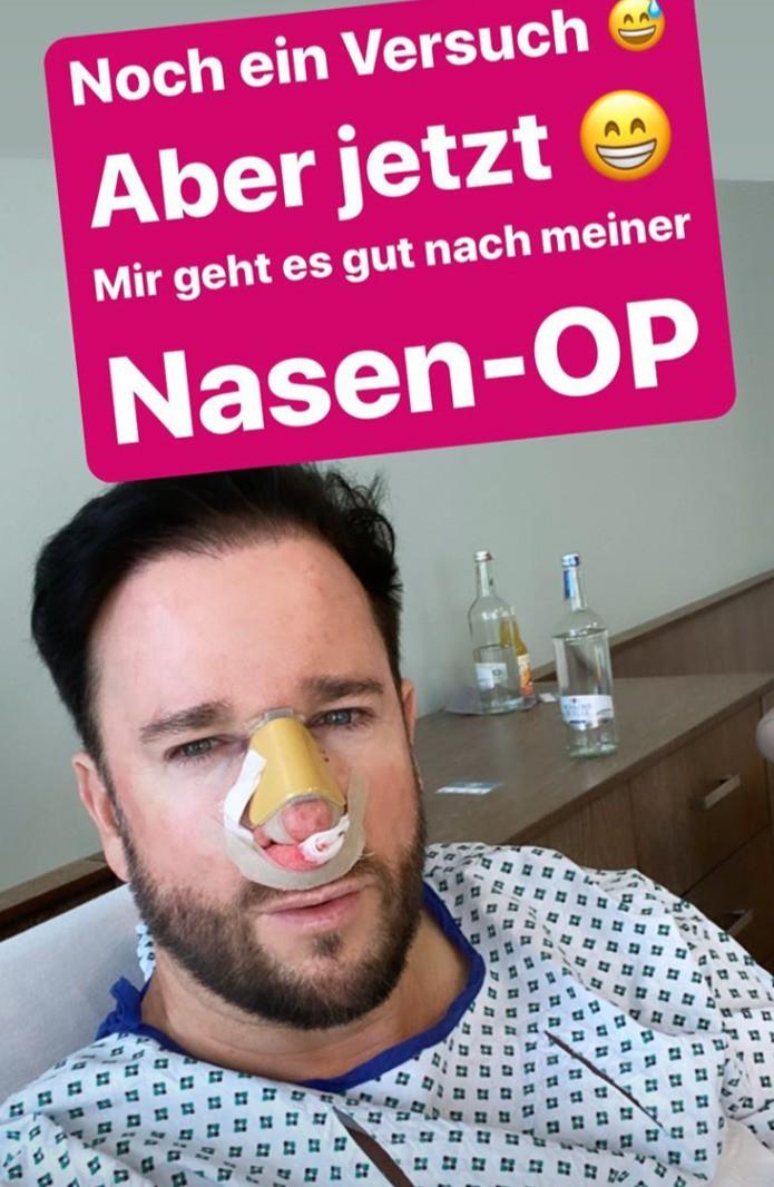 Michael Wendler in seiner Instagram-Story kurz nach der Nasen-Op