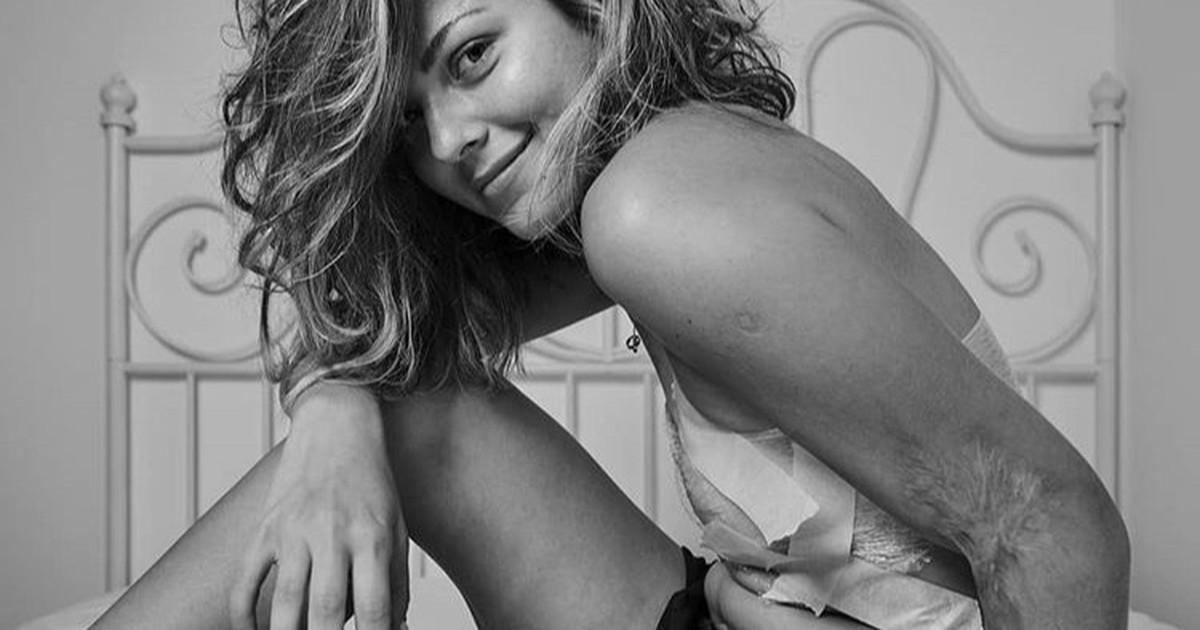 Liebe dich selbst: 10 Frauen zeigen ihren perfekten unperfekten Körper