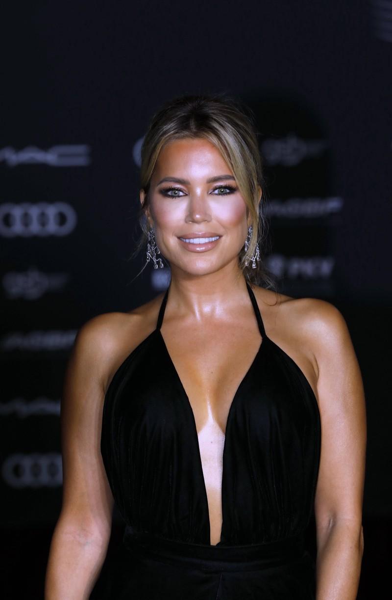 Auch Sylvie Meis hat offen zugegeben, dass sie im Gesicht mit einem Beauty-Eingriff nachgeholfen hat